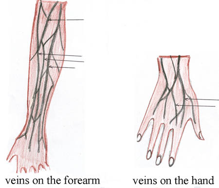 On the left is an image of the veins in the forearm and on the right ...